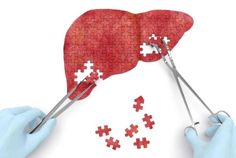bcaa gali sumazinti kepenu ligu komplikacijas