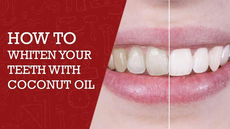 kokosu aliejus balina dantis mazina apnasas bei kovoja su dantenu infekcijomis
