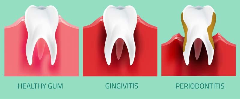 imbieras infekcijos gingvitas periodontitas