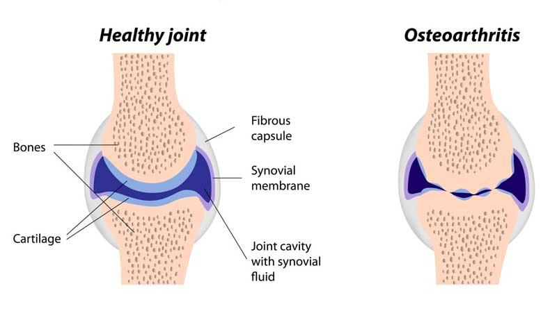 imbieras ir osteoartritas