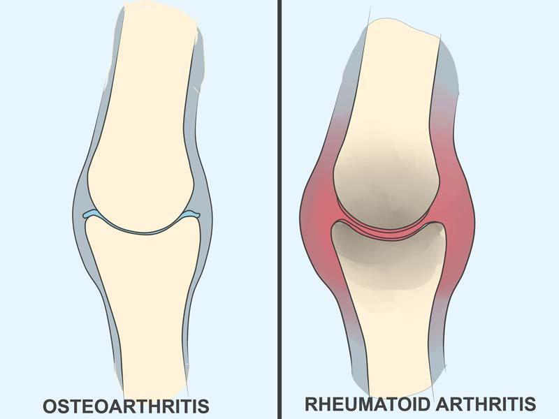 kurkuminas ir artritas
